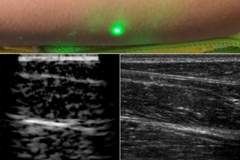 Los investigadores producen las primeras imágenes de ultrasonido con láser de humanos
