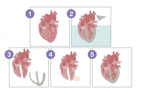 """Los ingenieros diseñan un """"corazón"""" biónico para probar las válvulas protésicas y otros dispositivos cardíacos"""