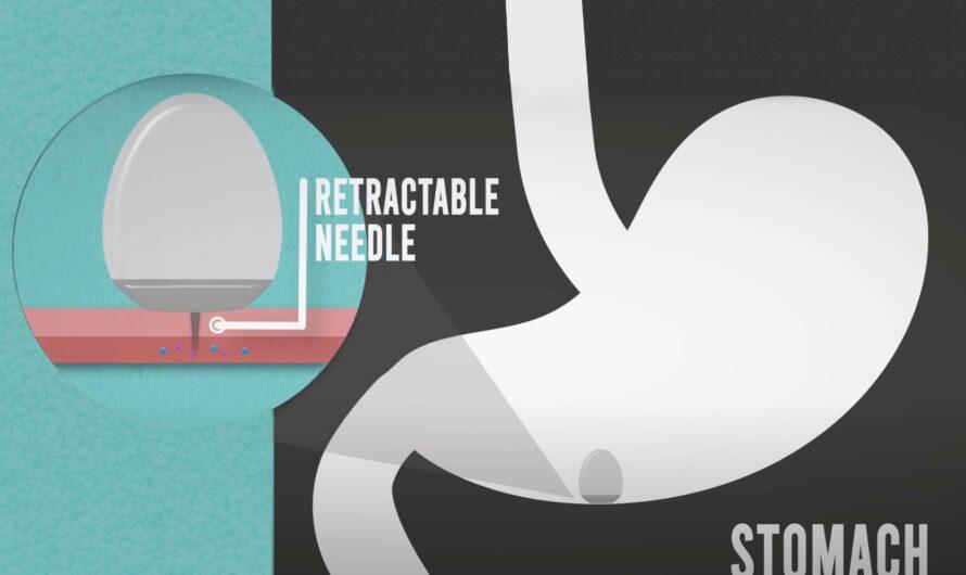 Cápsula de administración de fármacos podría reemplazar las inyecciones de fármacos proteicos | Noticias del MIT